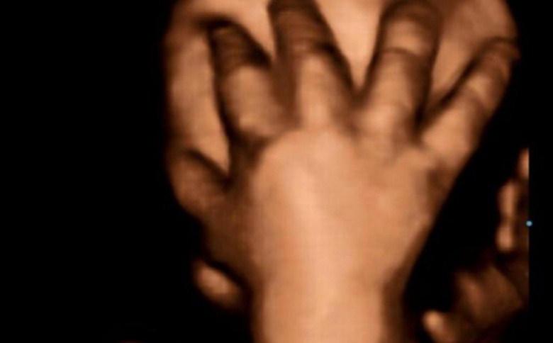 سونوگرافی جنین در هفته 40 بارداری