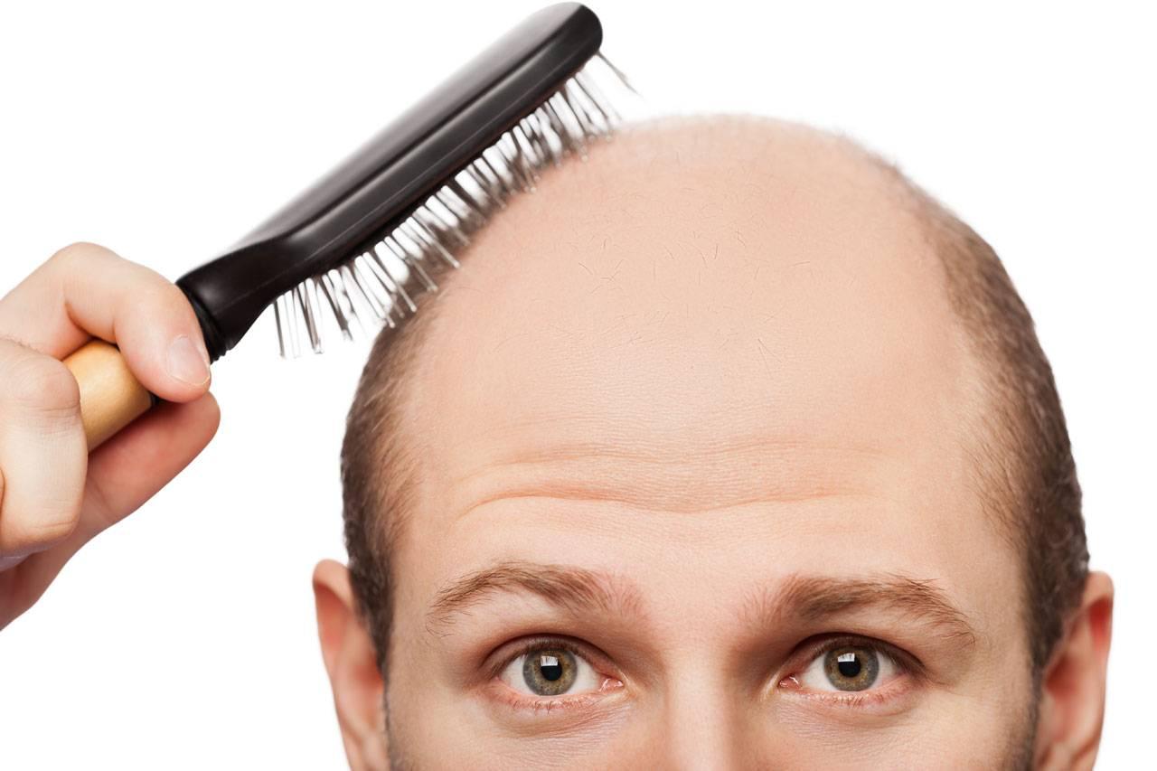 راه های جلوگیری از چرب شدن مو