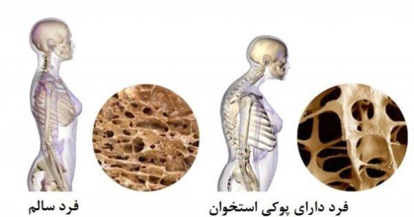 پوکی استخوان1