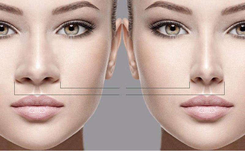 جراحی بینی1