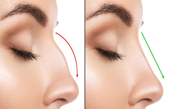 جراحی بینی2