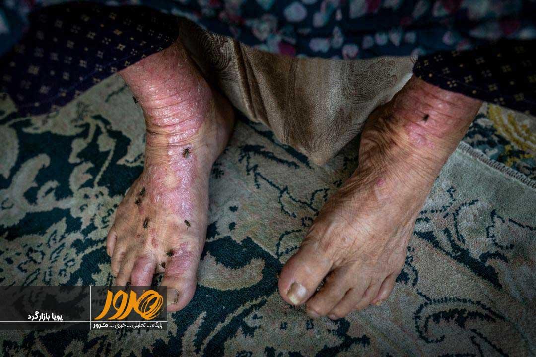 بیماری پوستی در سراوان