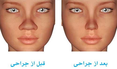جراحی بینی3
