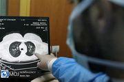 آمار سیاه کرونا در ایران/ ثبت ۵۰۸ کشته و بیش از ۳۹ هزار بیمار جدید