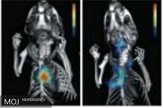 نانوذراتی که مانع التهاب بعد از حمله قلبی میشود
