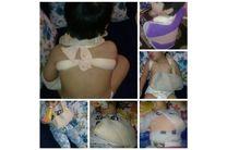 تعطیلی مهدکودک متخلف در حادثه بدرفتاری با کودک سه ساله