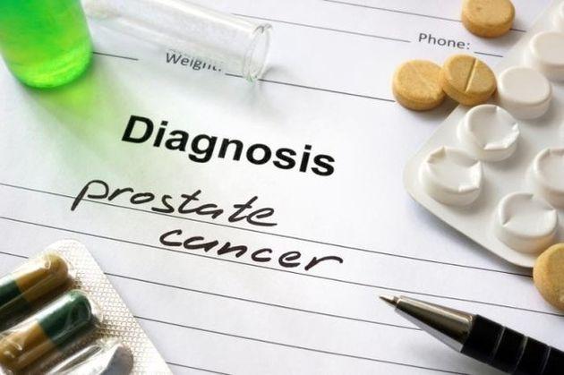 تاثیر داروهای ضدافسردگی در کاهش شیوع سرطان پروستات
