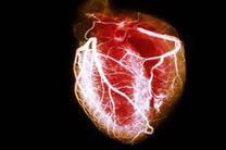 تلاش های جدید در حیطه مهندسی زیست پزشکی برای بهبود ترمیم قلب