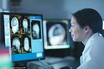 تشخیص آلزایمر یک دهه قلب از بروز