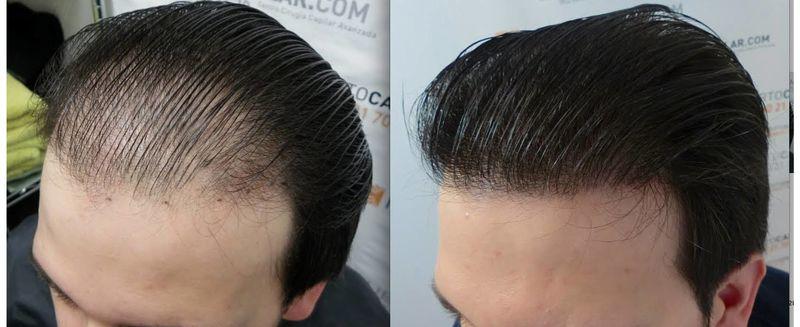 راه های جلوگیری و درمان چربی مو/چربی مو مهمترین عامل ریزش مو است