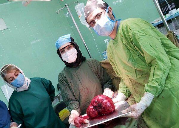 خروج توده پنج کیلویی از شکم یک زن ۴۲ ساله
