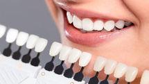دانستنی هایی در مورد کامپوزیت دندان/ تفاوت کامپوزیت دندان با لمینت چیست؟