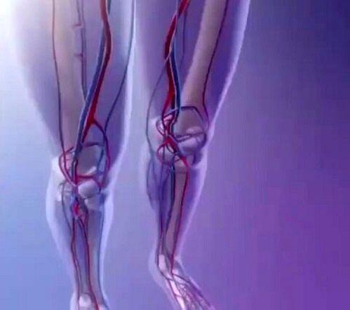 آمبولی شریانی در پاها شایع تر است/ تحرک مهم ترین گام پیشگیری