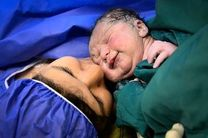 تفاوت های زایمان طبیعی و سزارین/زایمان طبیعی و احتمال بیشتر سلامت مادر و فرزند