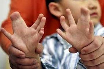 درمان رایگان کودکان دارای ناهنجاریهای مادرزاد در هرمزگان/بیشترین موارد ناهنجاری در بیمارستان خلیج فارس است