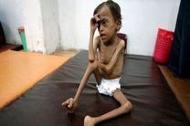 خشم صنعاء از سکوت سازمان ملل دربرابر کشتار میلیونها کودک یمنی