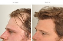 کاشت مو و ابرو با بالاترین تراکم در کلینیک پوست و مو رز