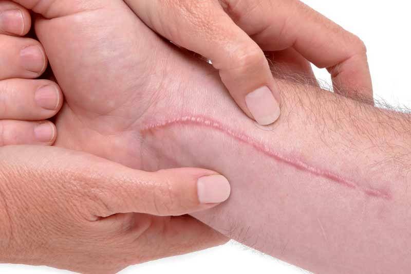 بهبود زخم در 2 دقیقه انجام می گیرد