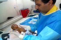 یک نوزاد نارس در بیمارستان گلستان اهواز به روش رادیولوژی مداخله ای کاتترگذاری شد