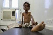 بی تفاوتی جامعه جهانی به فاجعه انسانی در یمن