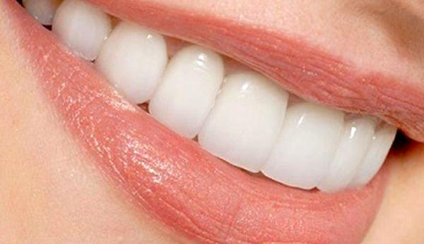 """غیر بهداشتی بودن پودر سفید کننده دندان با نام تجاری """"والنسی"""""""