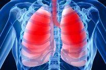 سومین عامل مرگ و میر در جهان در سال ۲۰۳۰ انسداد ریه است