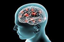 مغز بیماران مبتلا به آلزایمر باکتری بیشتری دارد