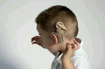 علوم پزشکی کرمانشاه مجوز جراحی کاشت حلزون شنوایی را به دست آورد