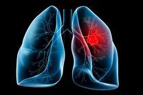 آلودگی هوا عامل ابتلای افراد به سرطان ریه