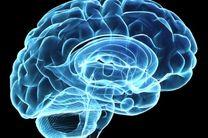 نقشه برداری از مغز با جدیدترین تجهیزات انجام می گیرد