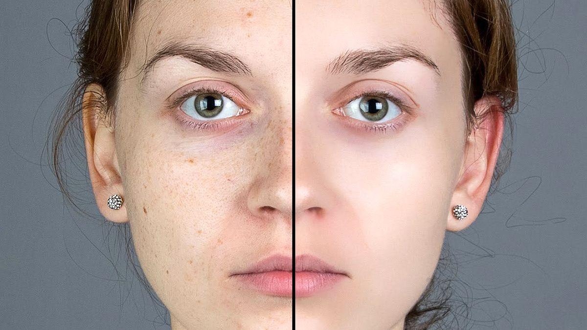 صافی و سلامت پوست را با این ۹ ویتامین بدست آورید