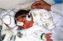 اجرا طرح غربالگری شنواییسنجی در همه بیمارستانهای گلستان
