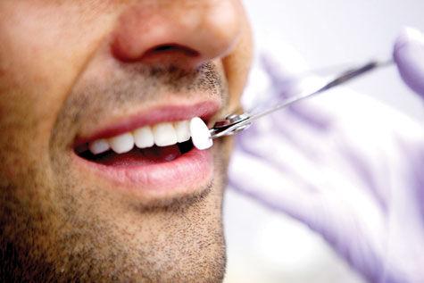 استفاده از سرامیک های دندانی، راهی برای ترمیم پوسیدگی