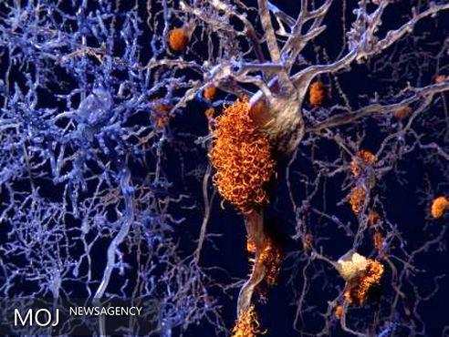 آلزایمر را با رژیم غذایی سالم و ورزش ضربه فنی کنید